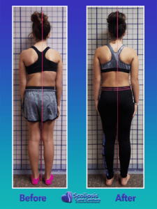 Improving posture with scoliosis exercises