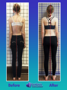 Nonsurgical scoliosis treatment for aesthetics