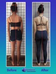 Uneven shoulders from scoliosis improvement