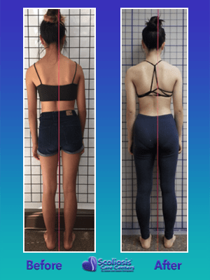 Uneven shoulders from scoliosis improvement