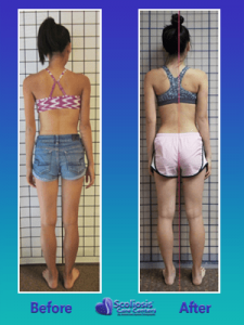 Posture transformation from scoliosis treatment