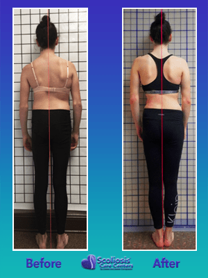 Uneven back from scoliosis treatment exercises
