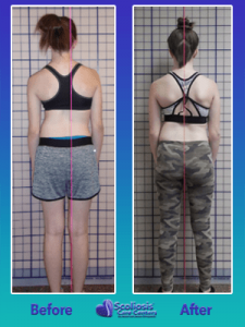 how to fix scoliosis posture without surgery