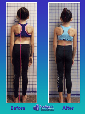 scoliosis exercises before and after