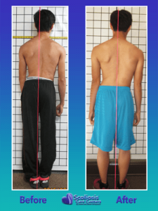 Scoliosis before and after posture improvement