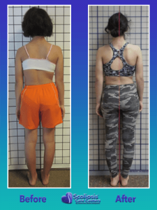 Scoliosis Nonsurgical Posture Before and After