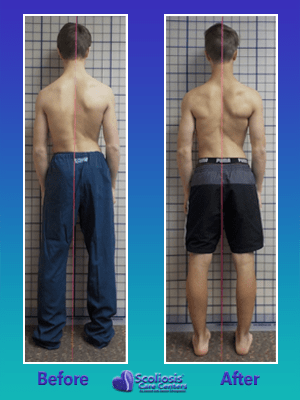 Fixing crooked back posture from scoliosis