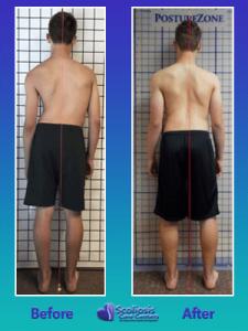 Scoliosis exercises to fix posture