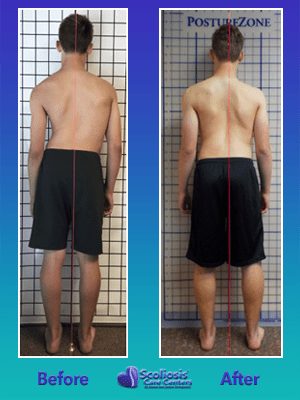 Scoliosis exercises to fix posture