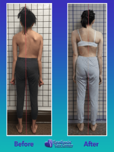 Scoliosis curved spine fixed with nonsurgical treatment