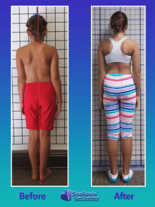 Back posture improved with scoliosis treatment