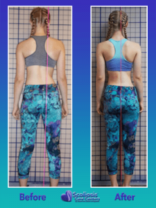 Treating scoliosis to fix posture