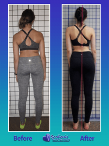 uneven posture cured with nonsurgical scoliosis treatment