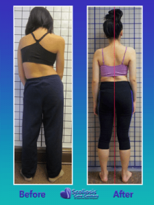 Nonsurgical Scoliosis Treatment for Severe Back Curve