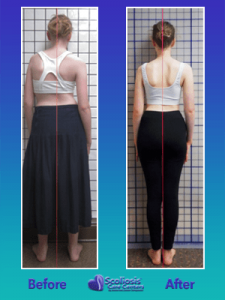 Nonsurgical Scoliosis Treatment Posture transformation