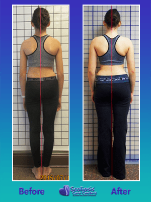 Scoliosis before and after upright posture improvment