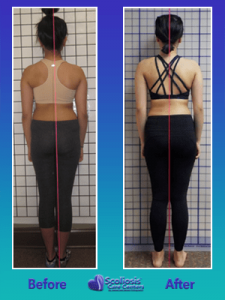 before and after posture improvement