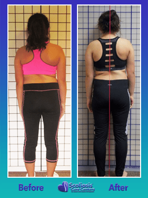 Scoliosis posture improvment