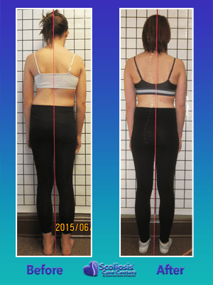 Nonsurgical scoliosis treatment posture results