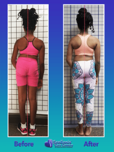 Dramatic Posture improvement from nonsurgical scoliosis treatment