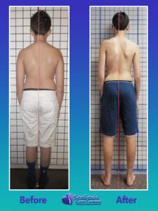 Treating Scoliosis improves posture