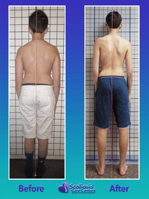 Treating Scoliosis improves posture