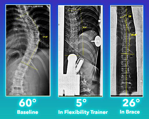 Scoliosis Flexibility comparison to Silicon Valley BraceTM