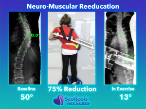 Scoliosis Treatment Exercise