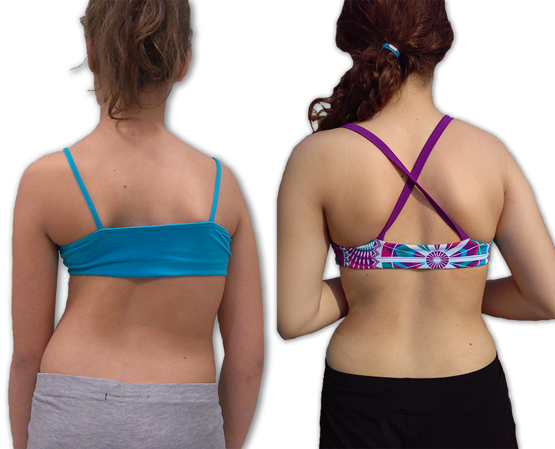 Scoliosis nonsurgical treatment before and after posture improvement