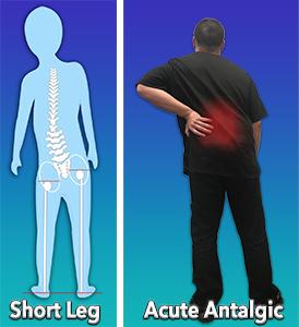 Short Leg Scoliosis and Acute Antalgic Scoliosis