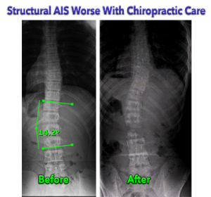 Structural Adolescent Idiopathic Scoliosis worse with Chiropractic Care
