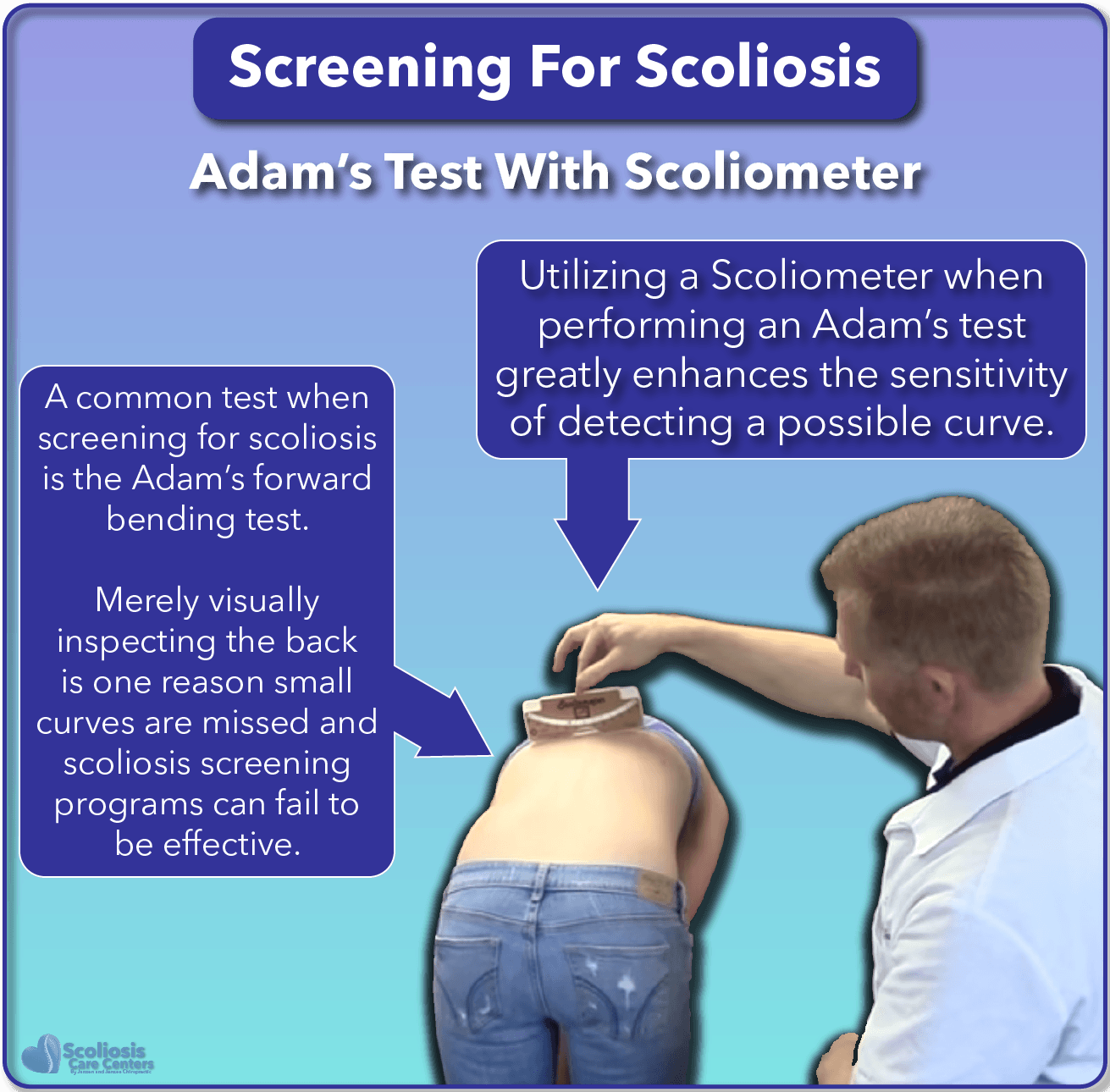 SureScreen scoliosis screening also using Adam's test