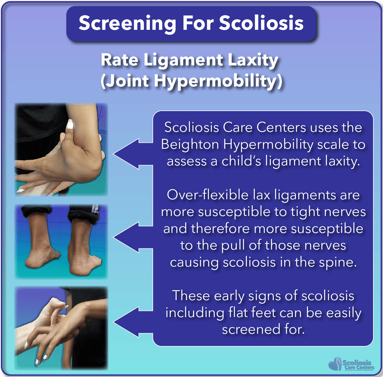SureScreen looks for early warning signs of scoliosis during screening