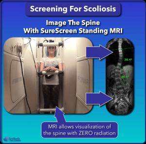 SureScreen standing MRI scoliosis screening