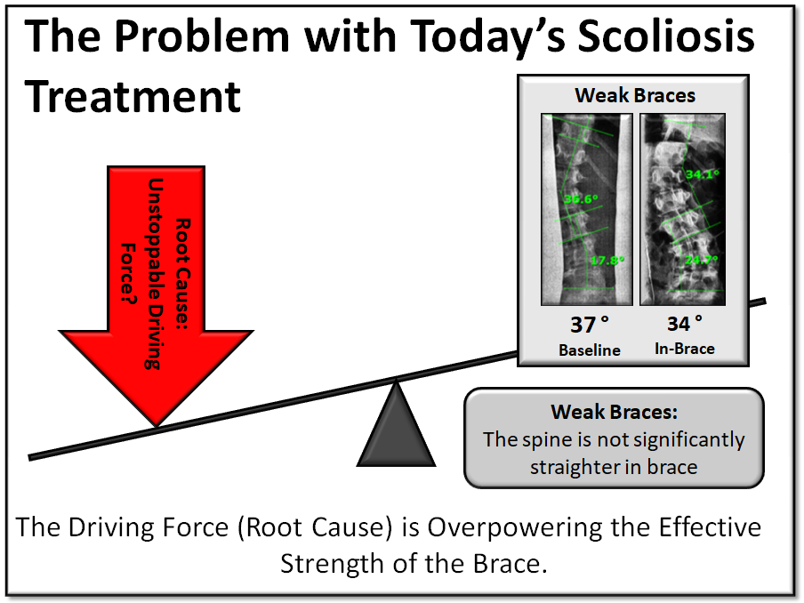 The Problem with Today's Scoliosis Treatment