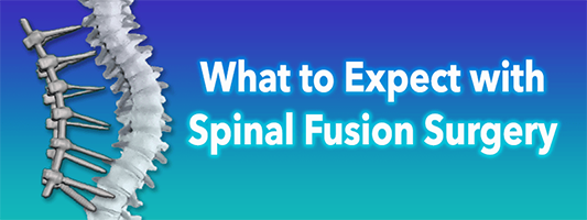 What to Expect with Spinal Fusion Surgery