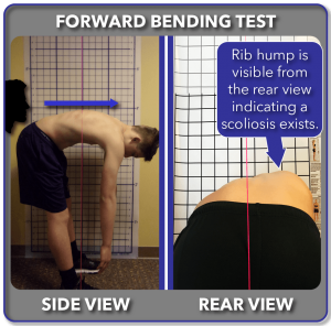 Traditional forward bending Adam's test positive result for scoliosis