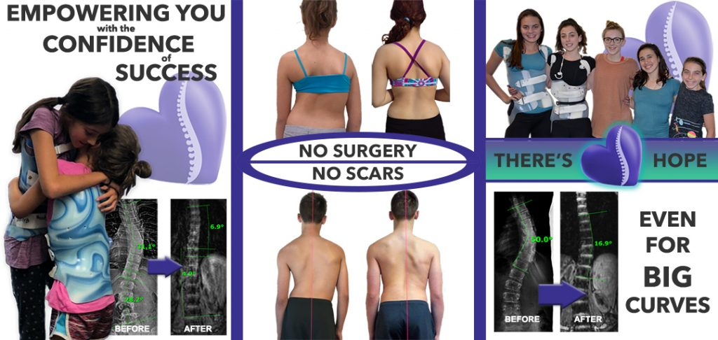 Scoliosis Care Centers Banner
