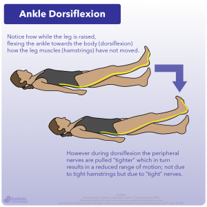 Example of ankle dorsiflexion assessing nerve (neural) tension