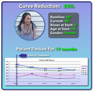 60 degree scoliosis treatment results