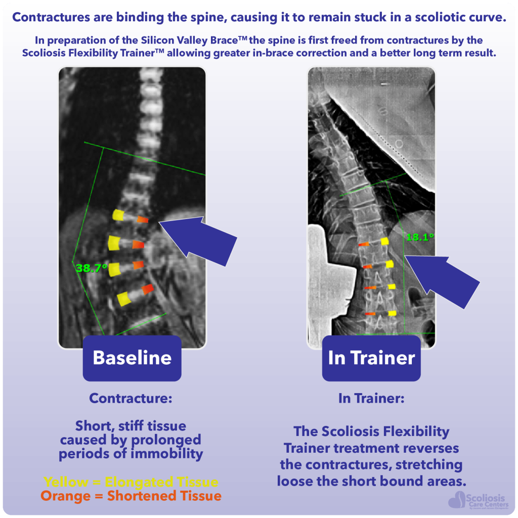 Description and example of baseline contractures compared to contracture release in Scoliosis Flexibility Trainer