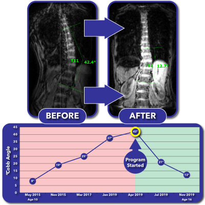 Before and after MRI images with progress graph for curve correction program