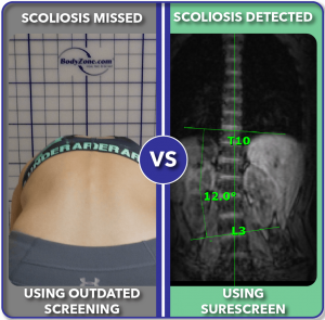 Before and after improved scoliosis screening with SureScreen 12 degree curve