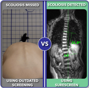 Before and after improved scoliosis screening with SureScreen 21 degree curve