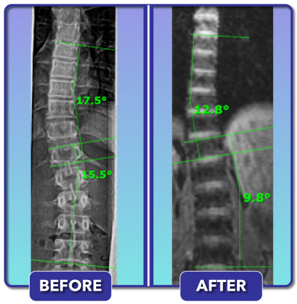 Before and after scoliosis treatment for 18 degree curve