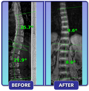 Before and after scoliosis treatment for 26 degree curve