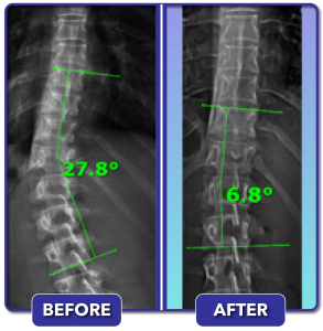 Before and after scoliosis treatment for 28 degree curve