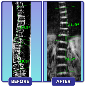 Before and after scoliosis treatment for 29 degree curve