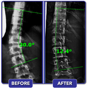 Before and after scoliosis treatment for 30 degree curve