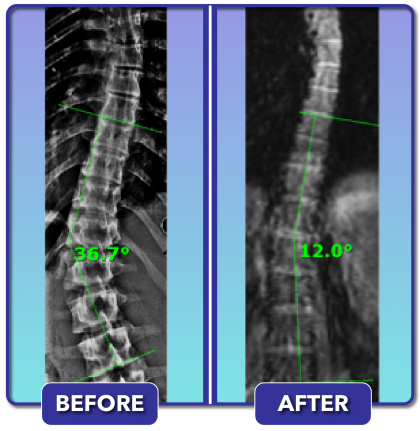 Before and after scoliosis treatment for 37 degree curve